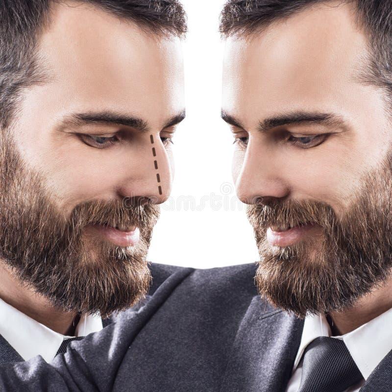 Mmale vänder mot före och efter kosmetisk näskirurgi royaltyfria bilder