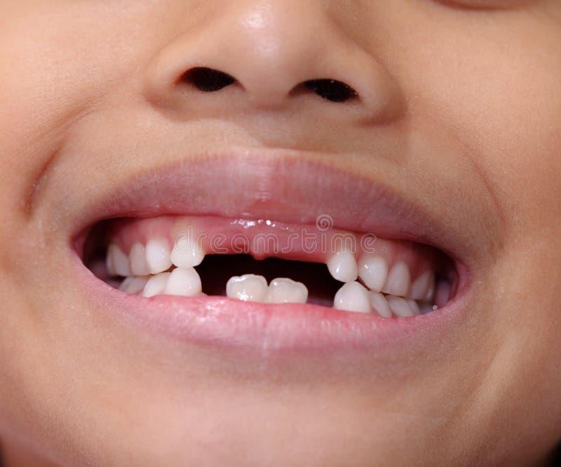 Moça asiática com falta do dente anterior imagens de stock