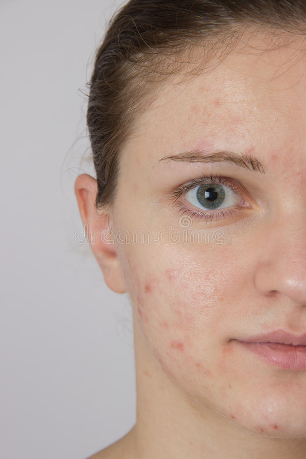 Moça bonita com acne em sua cara e na parte traseira em um whi fotografia de stock royalty free