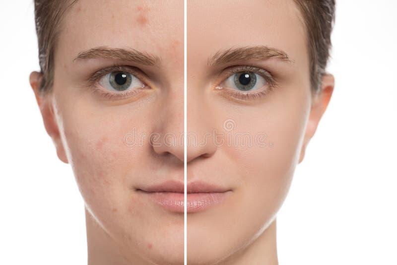 Moça bonita com acne vermelha e branca em sua cara antes imagens de stock