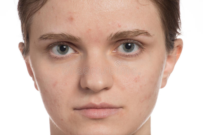 Moça bonita com acne vermelha e branca em sua cara antes foto de stock