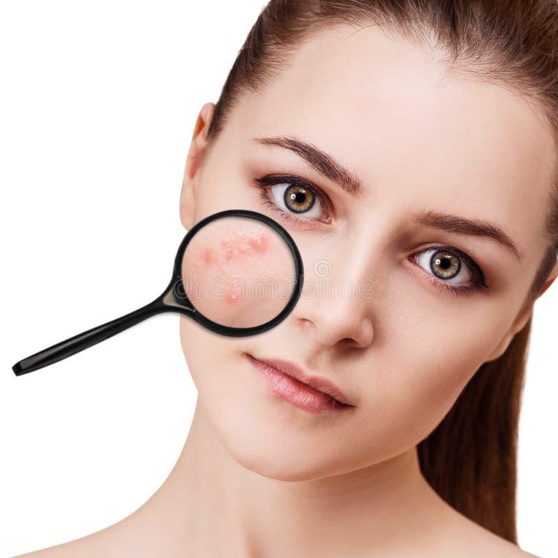 A moça mostra a acne com lupa imagem de stock royalty free