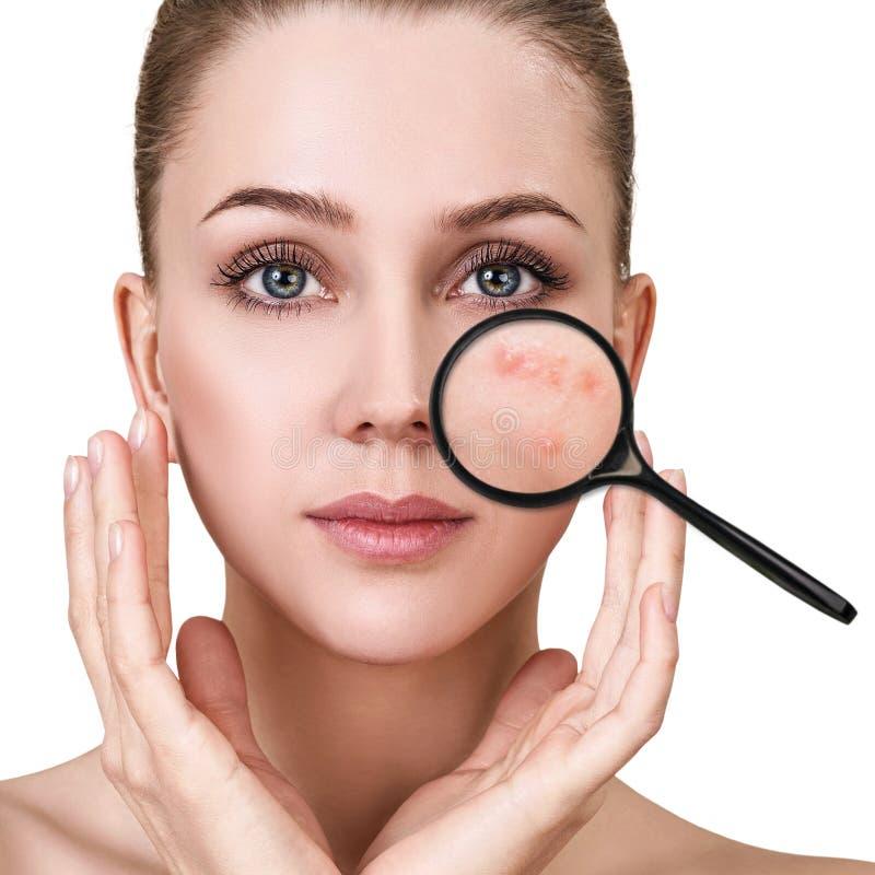 A moça mostra a acne com lupa fotos de stock