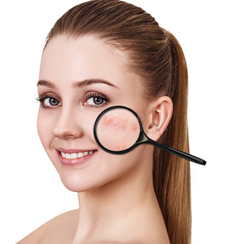 A moça mostra a acne com lupa fotos de stock royalty free