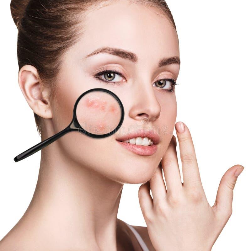 A moça mostra a acne com lupa fotografia de stock royalty free