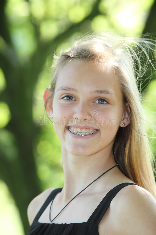 Moça vivo com cintas dentais imagens de stock royalty free