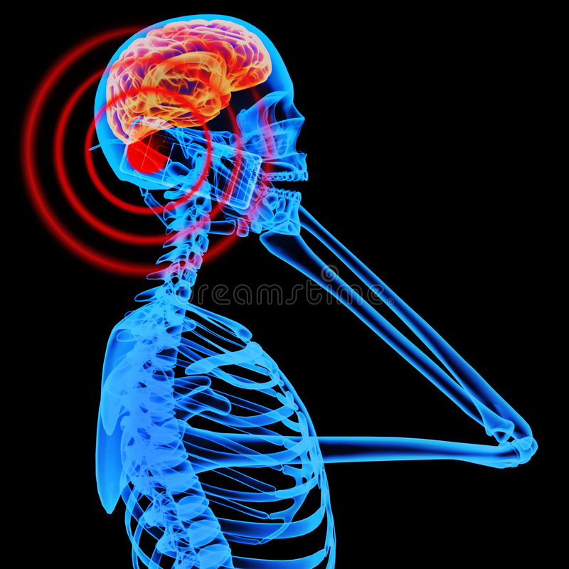 Free Mobile Phones Radiation Affect Brain Waves Stock Photo - 9222610