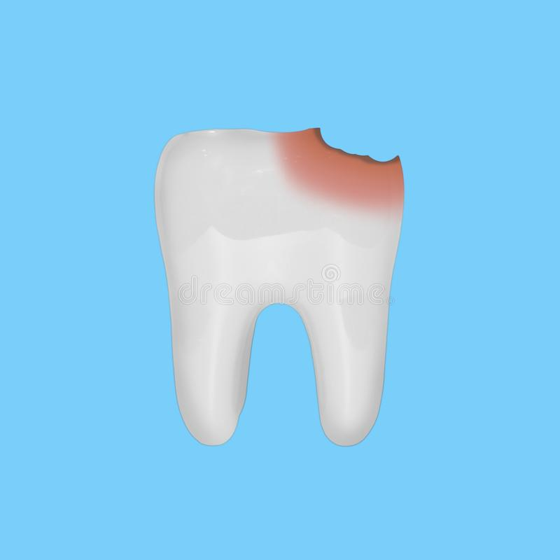 Modèle blanc de dent avec des dommages de carie, sur le fond bleu Concept de soin et de santé dentaire photos libres de droits
