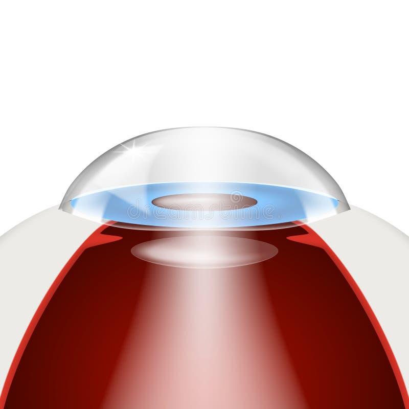 Modèle d'implantation de lentilles intra-oculaires illustration libre de droits