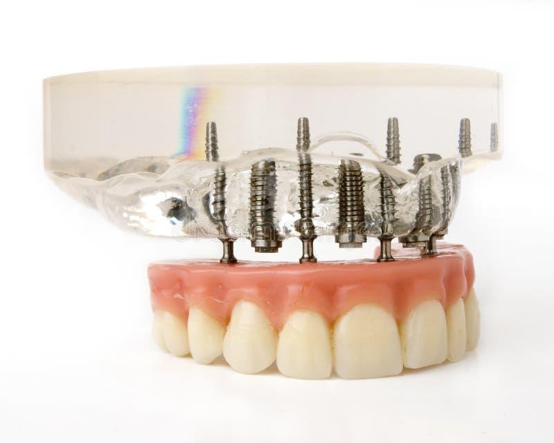 Modèle d'implants photographie stock libre de droits