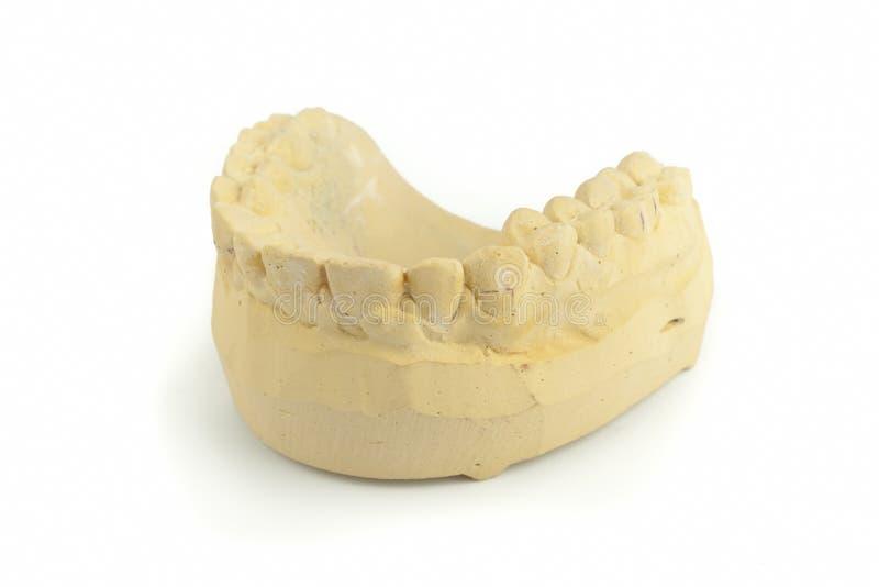 Modèle de gypse de dents photographie stock libre de droits