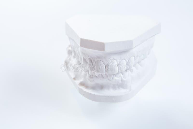 Modèle de gypse de mâchoire humaine sur un fond blanc photographie stock