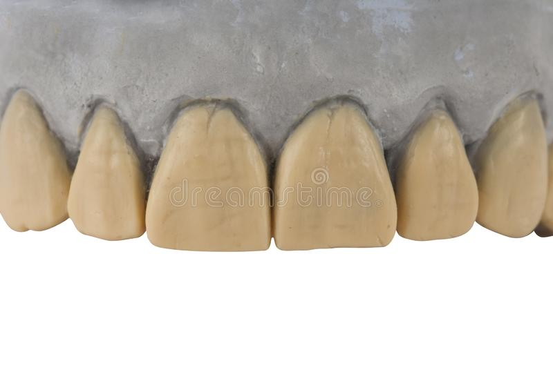 Modèle de gypse de mâchoire d'isolement sur le blanc photographie stock