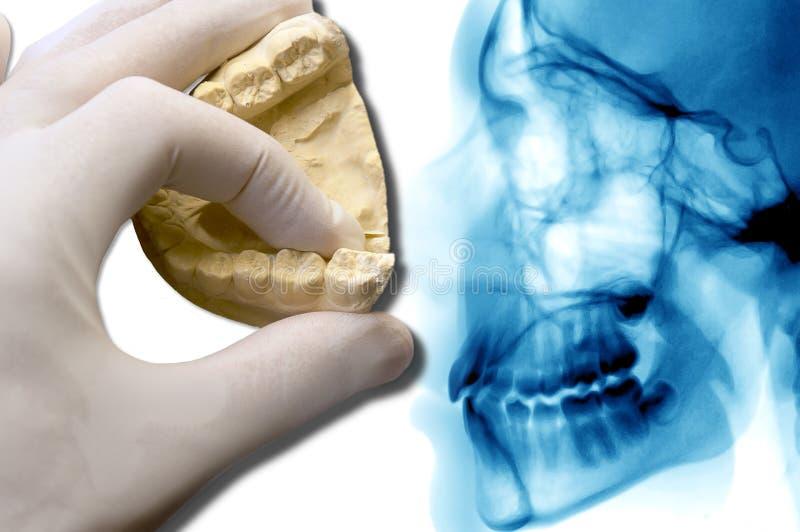 Modèle dentaire d'exposition de main au-dessus de rayon X photos libres de droits