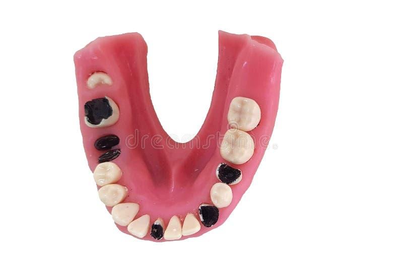 Modèle dentaire d'isolement des maladies images libres de droits
