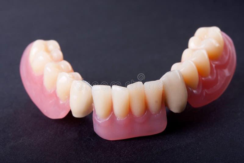 Modèle dentaire de cire image libre de droits