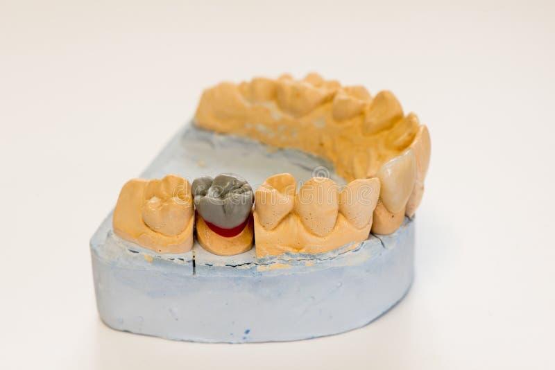 Modèle dentaire de gypse dans le bureau de laboratoire de dentiste - plan rapproché Dentiers de gypse avec des dents de porcelain photo stock