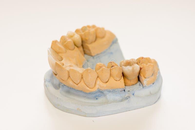 Modèle dentaire de gypse dans le bureau de laboratoire de dentiste - plan rapproché Dentiers de gypse avec des dents de porcelain photographie stock