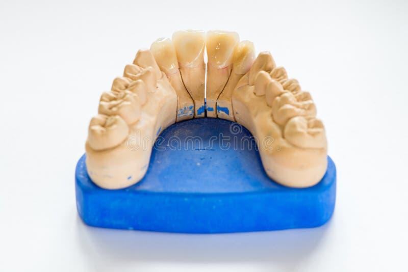 Modèle dentaire de gypse dans le bureau de laboratoire de dentiste - plan rapproché Dentiers de gypse avec des dents de porcelain image libre de droits