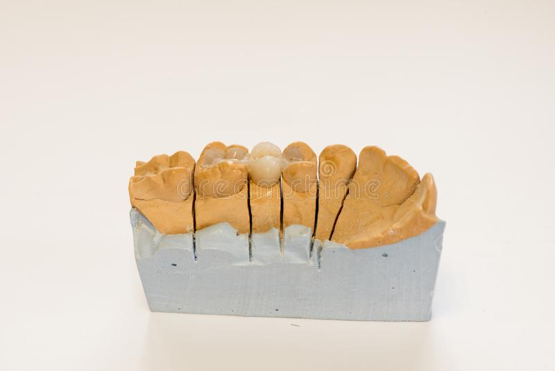 Modèle dentaire de gypse dans le bureau de laboratoire de dentiste - plan rapproché Dentiers de gypse avec des dents de porcelain image stock