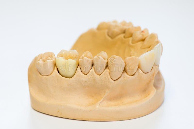 Modèle dentaire de gypse dans le bureau de laboratoire de dentiste - plan rapproché Dentiers de gypse avec des dents de porcelain photographie stock libre de droits