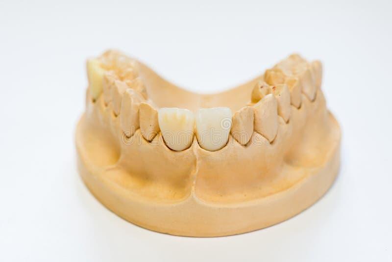 Modèle dentaire de gypse dans le bureau de laboratoire de dentiste - plan rapproché Dentiers de gypse avec des dents de porcelain photos libres de droits