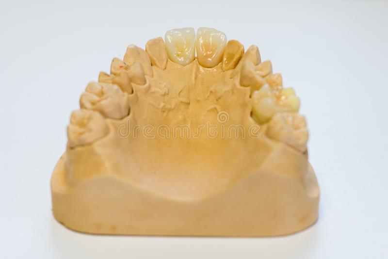 Modèle dentaire de gypse dans le bureau de laboratoire de dentiste - plan rapproché Dentiers de gypse avec des dents de porcelain photos stock