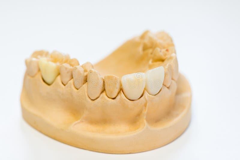 Modèle dentaire de gypse dans le bureau de laboratoire de dentiste - plan rapproché Dentiers de gypse avec des dents de porcelain images stock