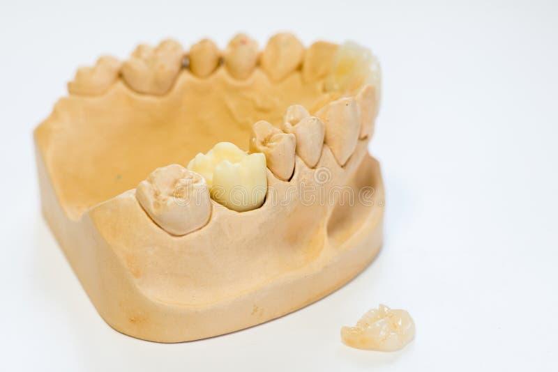 Modèle dentaire de gypse dans le bureau de laboratoire de dentiste - plan rapproché Dentiers de gypse avec des dents de porcelain images libres de droits