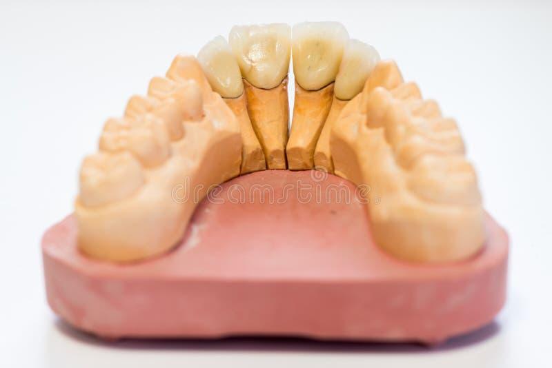 Modèle dentaire de gypse dans le bureau de laboratoire de dentiste - plan rapproché Dentiers de gypse avec des dents de porcelain photo libre de droits