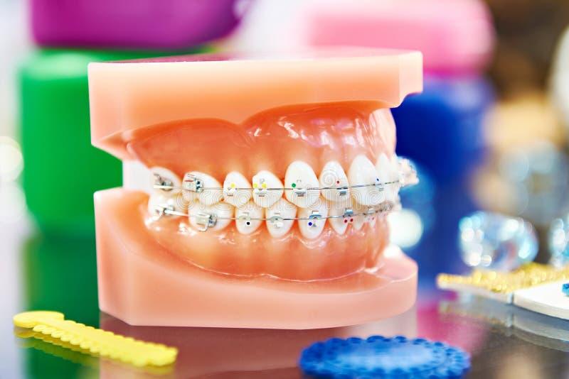 Modèle dentaire de la mâchoire humaine avec des accolades photographie stock