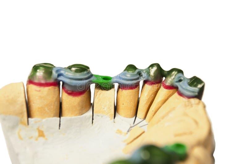 Modèle prosthétique de dentier images stock
