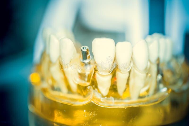 Mod?le transparent des dents humaines avec des implants photographie stock