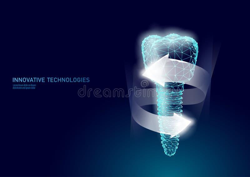 Mod?le g?om?trique dentaire de l'implant 3d de dent molaire poly bas Fil en m?tal de titan de technologie d'innovation d'art dent illustration stock