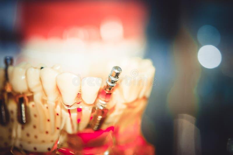 Mod?le transparent des dents humaines image libre de droits