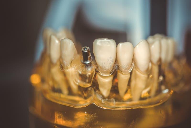 Mod?le transparent des dents humaines photo stock