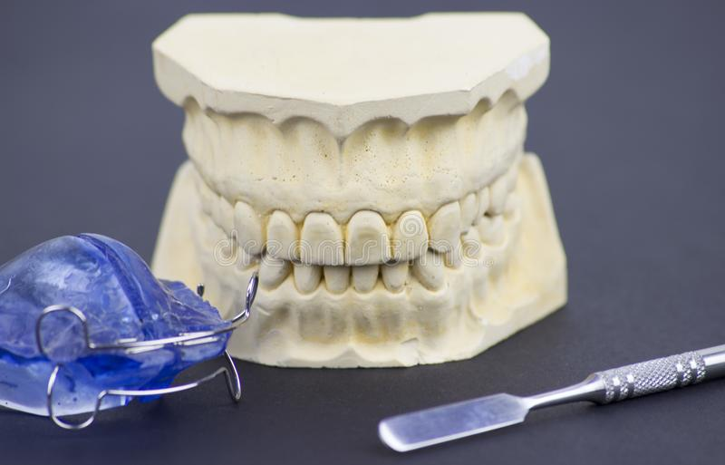 Modanatura dentario che illustra l'industria dentaria e l'implantologia dentaria immagine stock libera da diritti