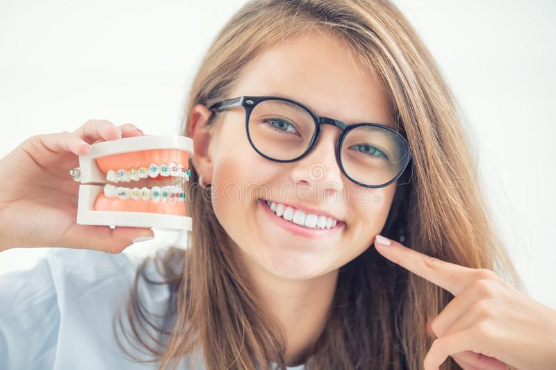 Model of a dental braces in the hand of a young girl with aligned teeth after the process of using a dental brace royalty free stock image