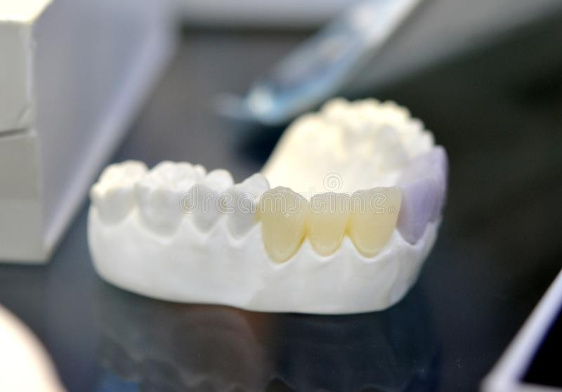 Model of the human jaw. With artificial teeth close-up royalty free stock photography