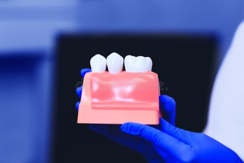 Model van tanden met tandimplant in de handen van echte arts stock afbeeldingen