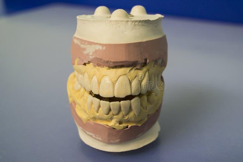 Modell av käkarna på skrivbordet för tandläkare` s på en blå bakgrund fotografering för bildbyråer