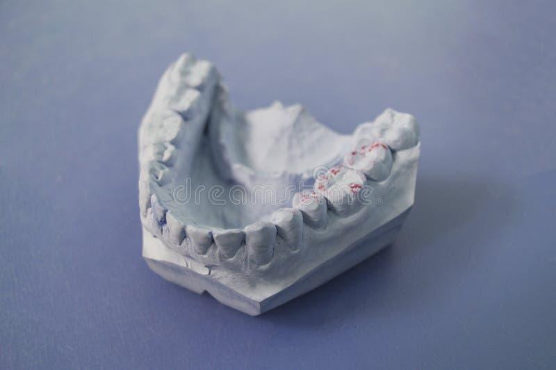 Modell av käkarna på skrivbordet för tandläkare` s på en blå bakgrund arkivbilder