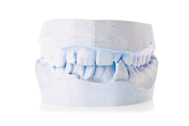 Modello alto vicino del gesso della mandibola umana isolato su fondo bianco Dentista, ortodontista, concetto dentario di trattame immagini stock