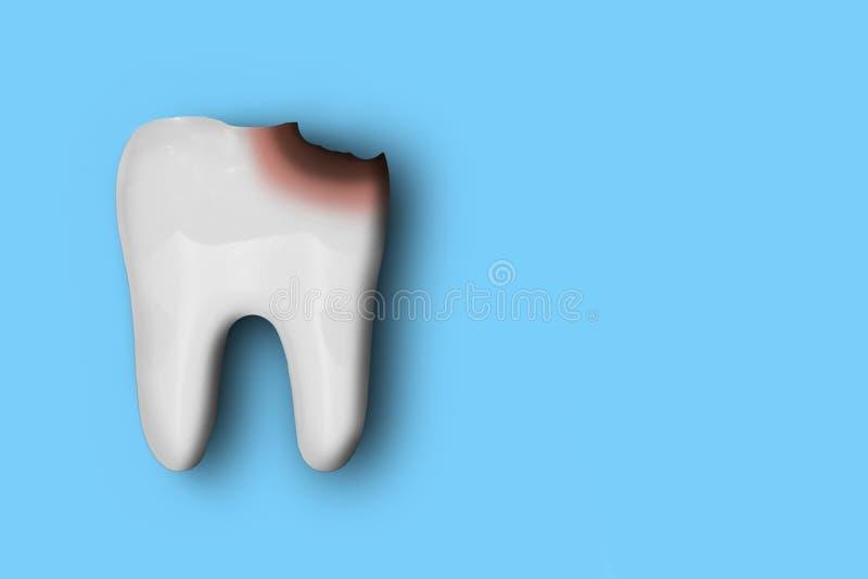 Modello bianco del dente con danno dalla carie, isolata su fondo blu Concetto di cura e di salute dentaria fotografia stock