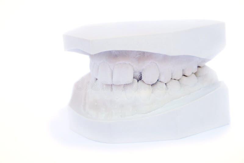 Modello del gesso dei denti fotografia stock