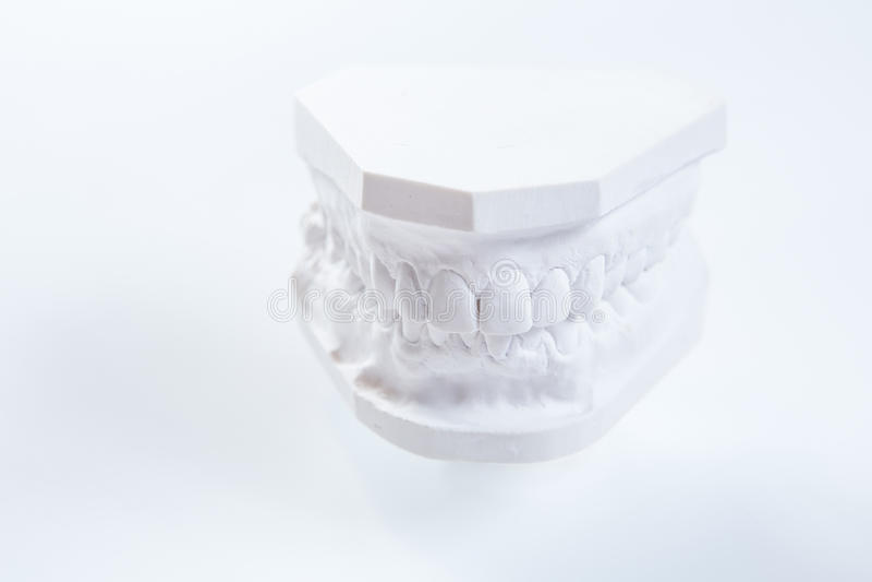 Modello del gesso della mandibola umana su un fondo bianco fotografia stock