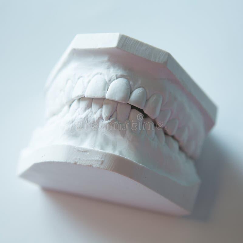 Modello del gesso della mandibola umana su un fondo bianco immagine stock