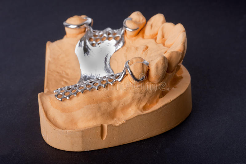 Modello dentale della cera fotografie stock libere da diritti