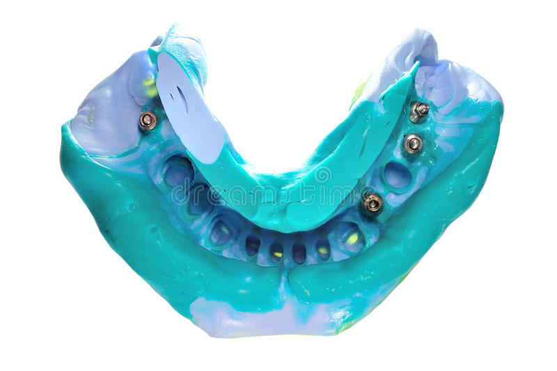 Modello dentale della cera con l'inserzione metallica fotografia stock