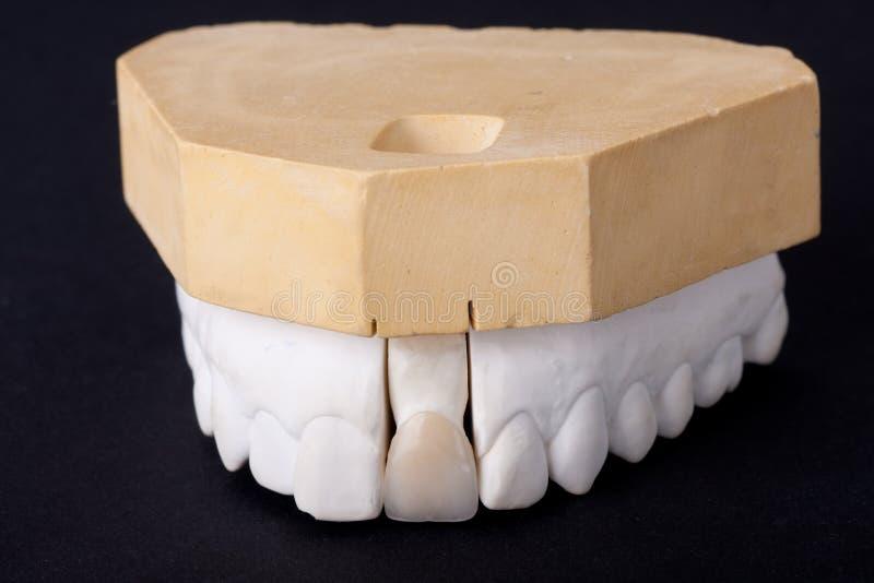 Modello dentale della cera del particolare immagine stock libera da diritti
